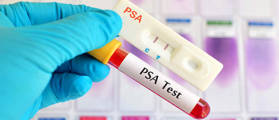 Normal PSA Level For Men's Prostate ProstaGenix